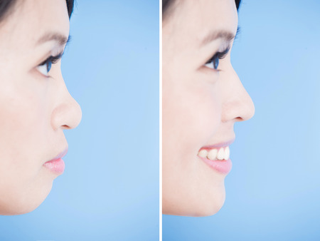 Photo for close up woman chin and nose on the blue background - Royalty Free Image