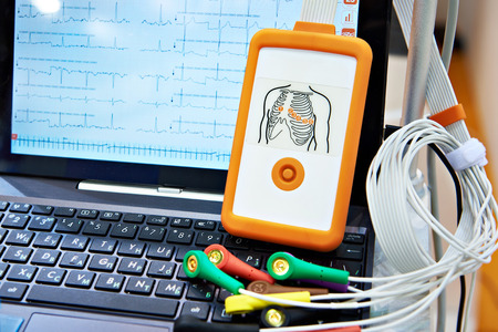 Foto de Portable medical equipment for ECG with laptop - Imagen libre de derechos