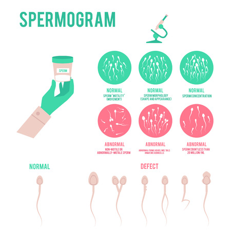 Illustration pour Spermogram analysis or test in laboratory medical poster with diagram icons depicting sperm condition and microscope flat vector illustration isolated on white background. - image libre de droit