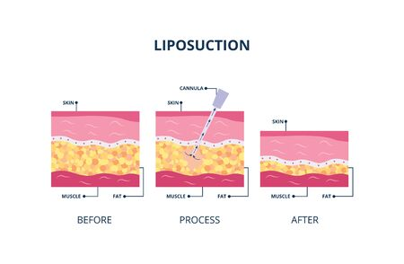 Ilustración de Suction-assisted liposuction procedure - hollow tube inserted in skin to fat suctioned, vector illustration isolated on white background. Underskin body fat banner. - Imagen libre de derechos
