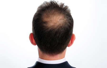 Foto de hair loss in humans - Imagen libre de derechos
