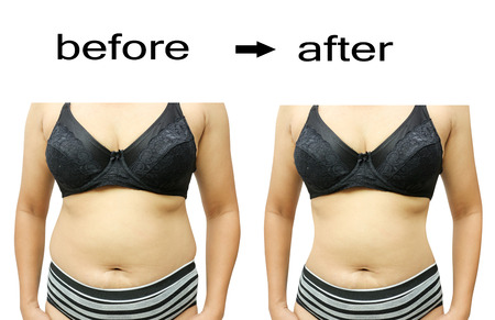 Foto de Woman's body before and after a diet - Imagen libre de derechos