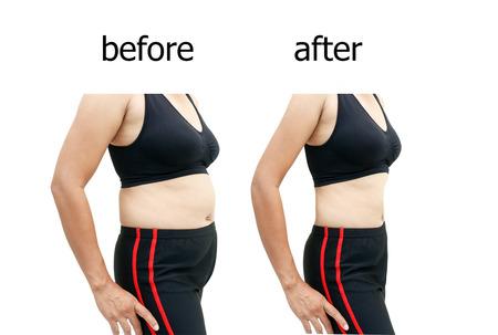 Foto de Woman's body before and after a diet - Imagen libre de derechos