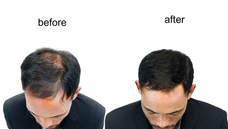 Photo for  before and after bald head of a man on white background. - Royalty Free Image