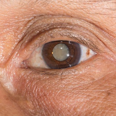 Close up of the mature cataract during eye examination.