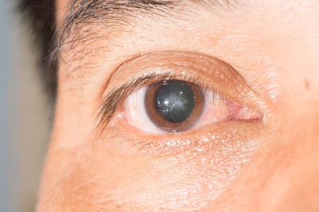 Foto de close up of cataract during eye examination.anterior, posterior sub capsular cataract. - Imagen libre de derechos