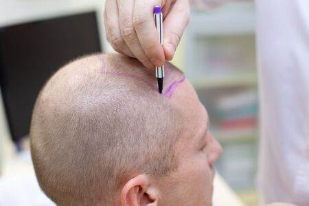 Photo pour Baldness treatment. Patient suffering from hair loss in consultation with a doctor. Preparation for hair transplant surgery. The line marking the growth of hair. The patient controls the marking in the mirror. Head close-up. - image libre de droit