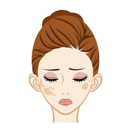 Illustrazione per Spotted-Facial Skin Trouble - Immagini Royalty Free
