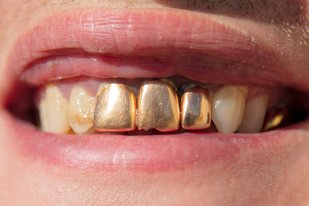 Photo pour Golden teeth in the mouth of a man. Macro - image libre de droit