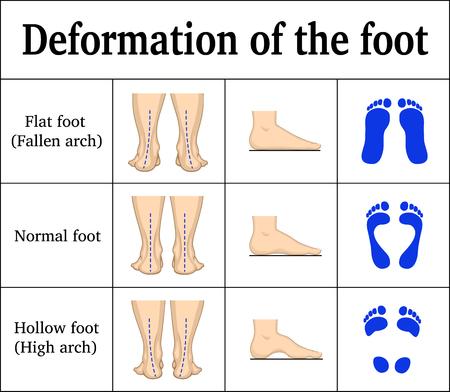 Ilustración de Illustration of the deformation of the foot. - Imagen libre de derechos