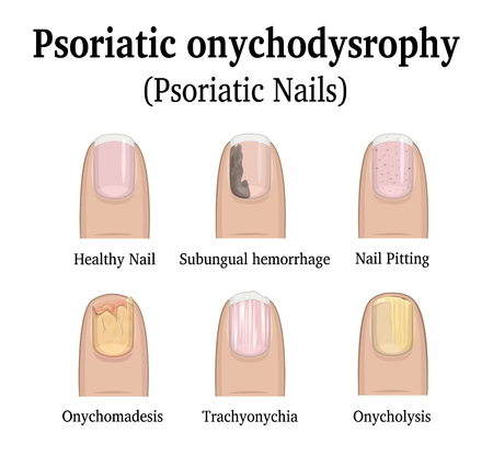 Illustration pour Illustration of five types of nail psoriasis, such as nail pitting, subungual hemorrhage, onychomadesis, trachyonychia and onycholysis - image libre de droit