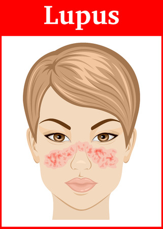 Illustrazione per Illustration symptoms of Systemic lupus on the face of a young girl - Immagini Royalty Free