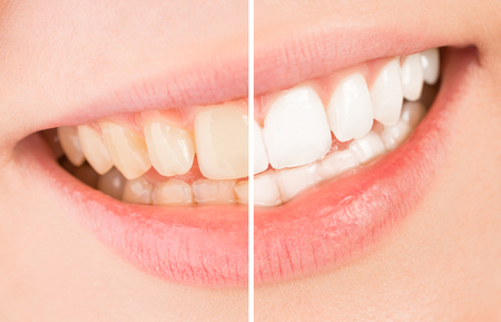 Photo pour Whiten - a beautiful smile and teeth whitening treatment before and after. - image libre de droit