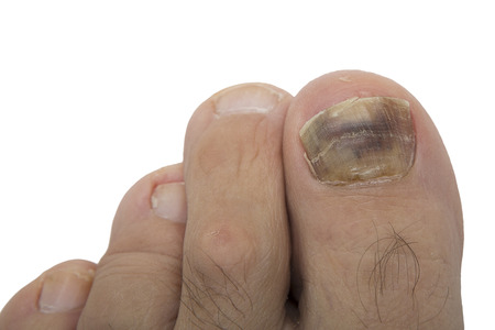 Foto de Fungal infection on the human toe. Psoriasis on the foot of an old man. Onychomycosis is a fungal infection of the big toe. Nail melanoma. - Imagen libre de derechos