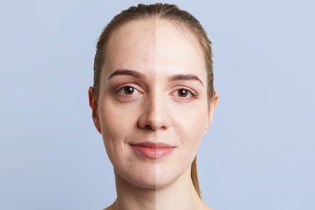 Photo for Close up portrait of woman`s face divided into two parts: healthy pure skin and unhealthy with blackheads, contrast between two skins. Facial treatment, cosmetology, medicine and beauty concept - Royalty Free Image