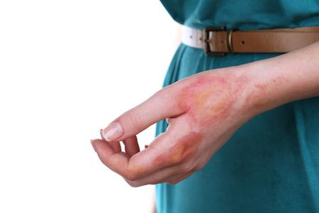 Photo pour Horrible burns on female hand isolated on white - image libre de droit
