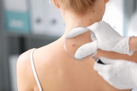 Foto de Dermatologist examining birthmark of patient in clinic. Cancer concept - Imagen libre de derechos