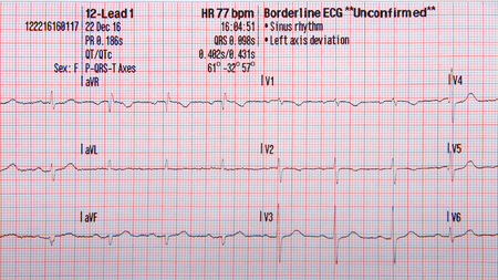 Foto de 12 lead EKG strip showing normal sinus rhythm with unconfirmed left axis deviation - Imagen libre de derechos
