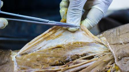 Foto de Anatomy dissection of a cadaver showing adductor canal using scalpel scissors and forceps cutting skin flap revealing important structures arteries veins nerves - Imagen libre de derechos