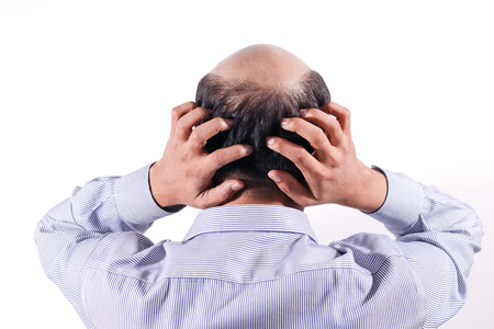 Photo pour bald businessman with his head on scalp view from behind with white background - image libre de droit