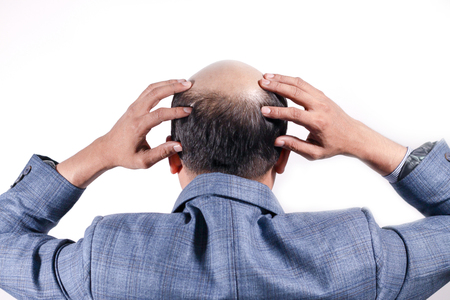 Foto de bald businessman with his head on scalp view from behind with white background - Imagen libre de derechos