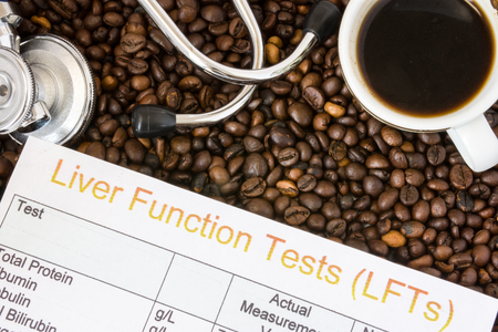 Foto de Influence of coffee or caffeine on liver functions, enzymes, activity. Result of liver function test examination near mug with coffee, stethoscope and glasses in  background roasted coffee beans - Imagen libre de derechos
