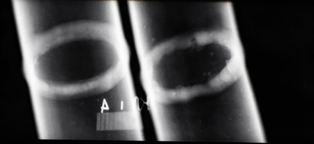 Photo for Transcript of x-ray images of welds of pipelines to identify defective areas - Royalty Free Image