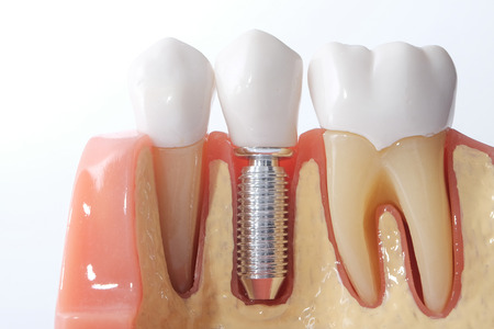 Photo pour Generic Dental Implant Study Analysis Crown Bridge Demonstration Teeth Model. - image libre de droit