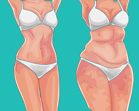 Illustrazione per Fat girl. Loss weight on diet or sport. Before picture. Weight loss concept. Vector illustration - Immagini Royalty Free