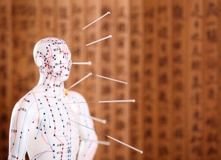 Photo pour Eastern or Asian acupuncture Medical Treatment.Shallow Dof. - image libre de droit