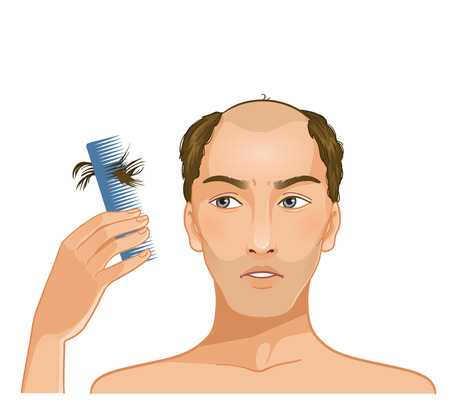 Illustration for Young baldheaded man with hair fall  - Royalty Free Image