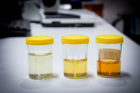 Photo pour Urine sample - image libre de droit