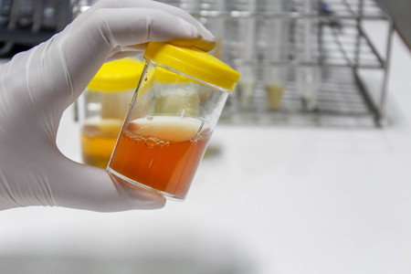 Foto de Urine sample - Imagen libre de derechos