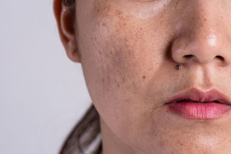 Foto de Woman with problematic skin and acne scars. Problem skincare and health concept. Wrinkles melasma Dark spots freckles dry skin and pigmentation on face asian woman. - Imagen libre de derechos