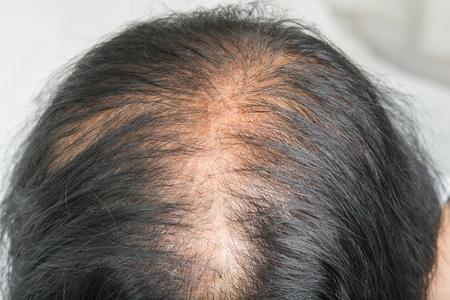 Photo pour Thin  hair and scalp  and broken hair - image libre de droit