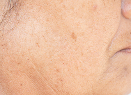 Photo for freckles on the face. in old women - Royalty Free Image
