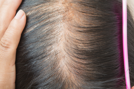 Foto de Thin  hair and scalp  and broken hair - Imagen libre de derechos