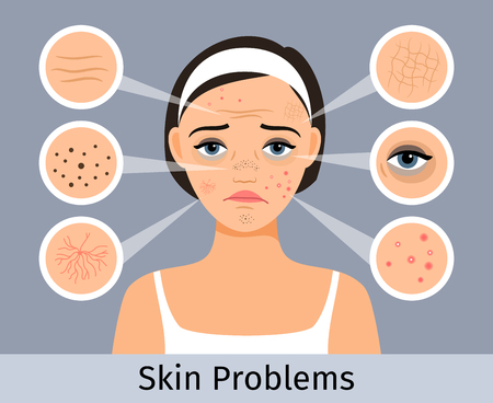 Illustration pour Beauty and freshness of the woman face vector illustration. Girl with skin spots, pimples and wrinkles - image libre de droit