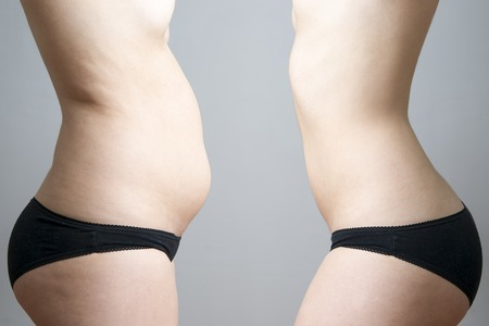 Photo pour Obesity before after. Young woman's body on gray background. - image libre de droit