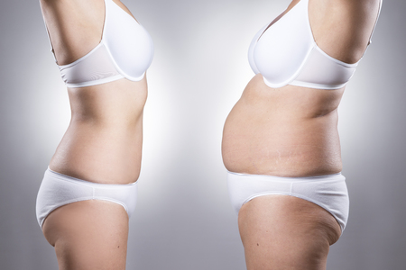 Foto de Woman's body before and after weight loss on a gray background - Imagen libre de derechos