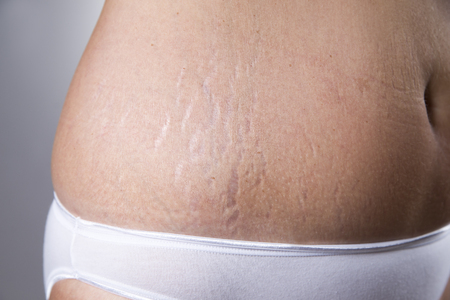 Photo pour Female belly with stretch marks closeup on a gray background - image libre de droit