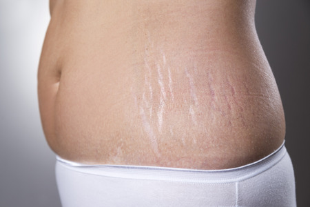 Photo pour Female belly with pregnancy stretch marks closeup on a gray background - image libre de droit