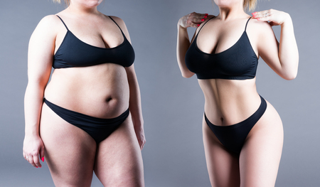 Photo pour Woman's body before and after weight loss on gray background - image libre de droit
