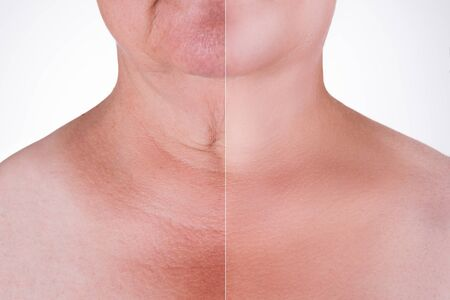 Photo pour Skin rejuvenation on the neck, before after anti aging concept, wrinkle treatment, facelift and plastic surgery, half of body isolated on white background - image libre de droit