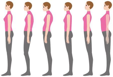 Illustrazione per PrintCorrect posture and bad posture - Immagini Royalty Free