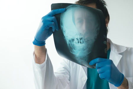 Photo pour Doctor examining x-ray of the patient's skull in a medical clinic. Healthcare professional analyzing imaging test of human head. - image libre de droit