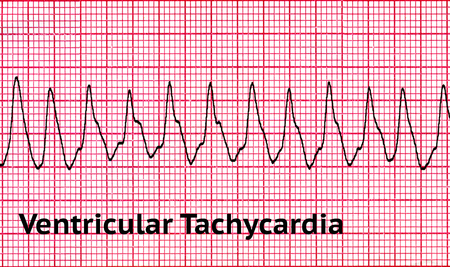Photo pour Ventricular tachycardia (VT) is a tachycardia, or fast heart rhythm, that originates in one of the ventricles of the heart. This is a potentially life-threatening arrhythmia because it may lead to ventricular fibrillation, asystole, and sudden death. - image libre de droit