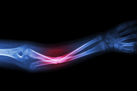 Photo for X-ray fracture ulnar bone (forearm bone) - Royalty Free Image