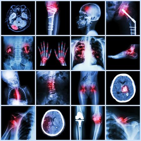 Set of X-ray multiple part of human,Multiple disease,orthopedic,surgery (Stroke,Bone fracture,Orthopedic operation,Kidney stone,Arthritis,Gout,Pulmonary tuberculosis,Heart disease,Scoliosis,etc)