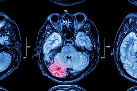 Foto de MRI of brain : brain injury - Imagen libre de derechos